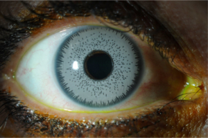 brown eyes blue