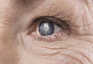cataract eye close up