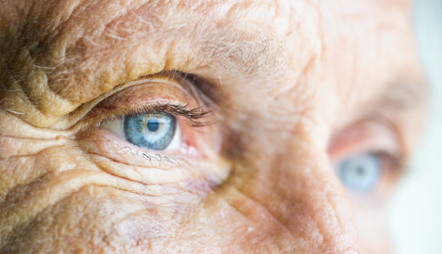 cataract condition