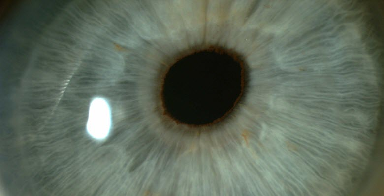 Eye lens closeup, implant surgery