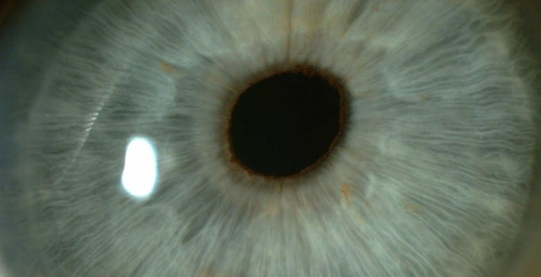 Eye lens closeup, implant surgery