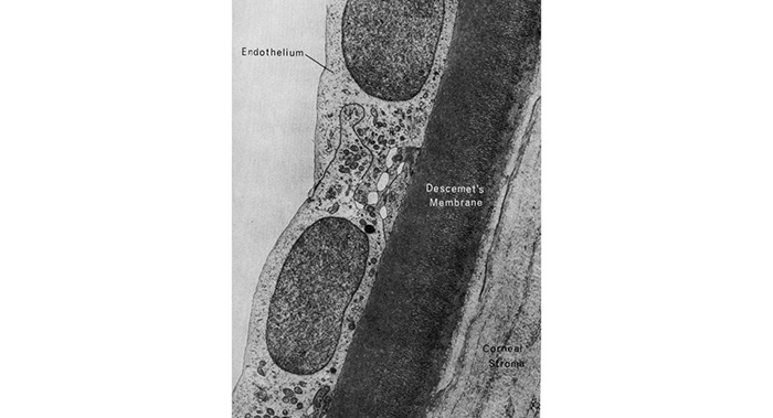diagram of fuchs dystrophy endothelial cells