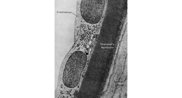 diagram of fuchs dystrophy endothelial cells