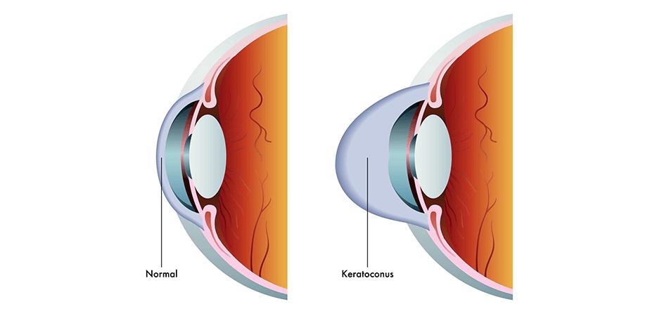keratoconus diagram