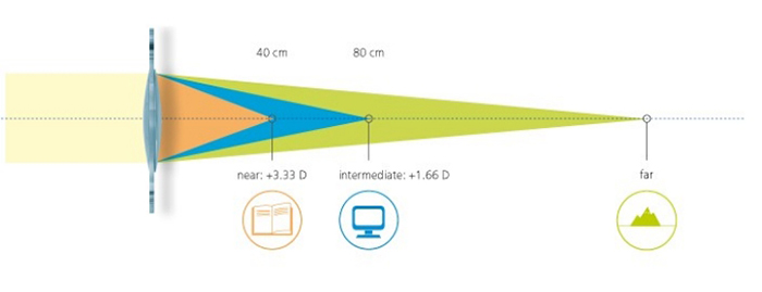 multifocal lens implants