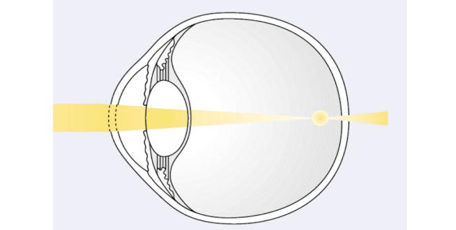 myopia explanation