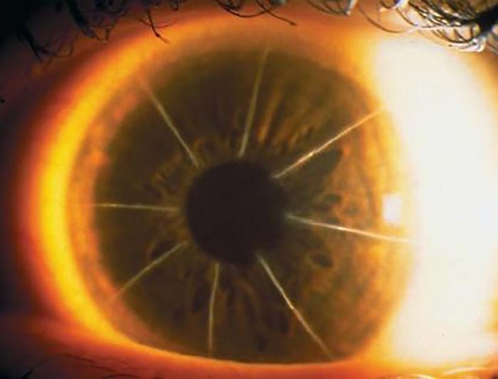 radial keratomy eye close up