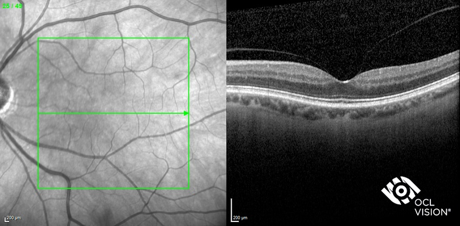 Fig 1a. Normal macula