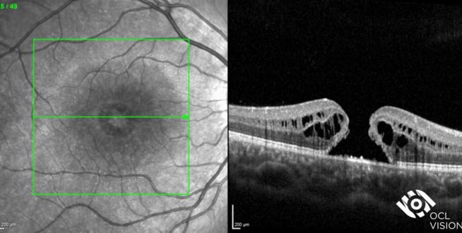 macular hole OCT
