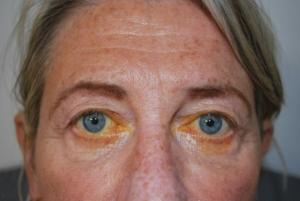 Upper blepharoplasty before 1