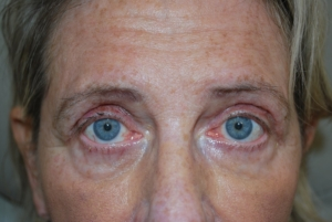 Upper blepharoplasty after 1