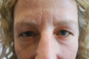 Upper blepharoplasty before 2