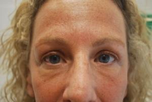 Upper blepharoplasty after 2