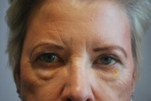Upper blepharoplasty before 3