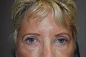 Upper blepharoplasty after 3