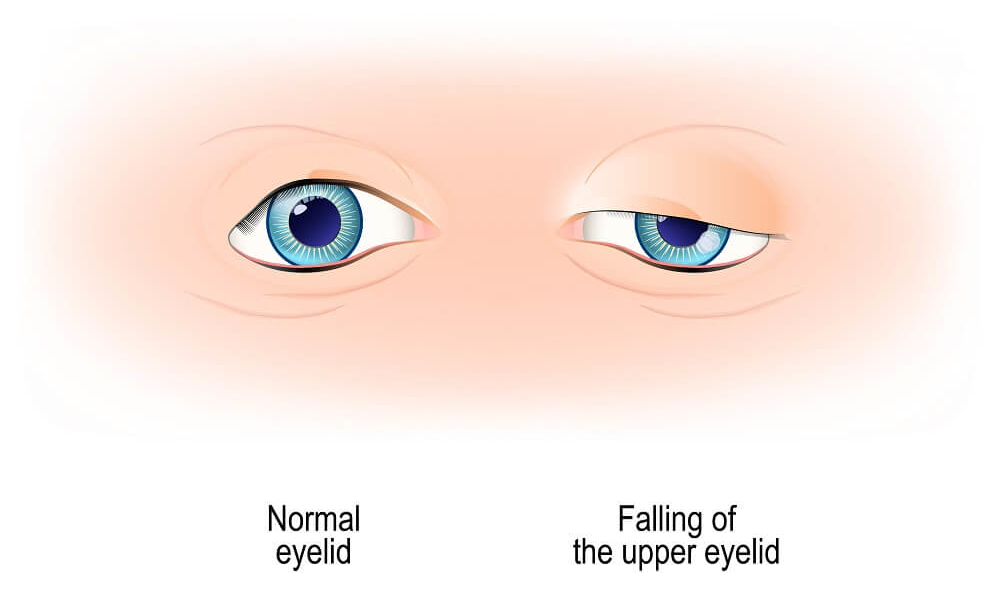 ptosis surgery (droopy eyelid)