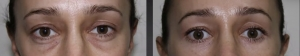 Lower blepharoplasty before and after 5