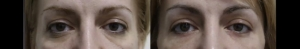 Lower blepharoplasty before and after 3