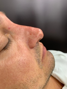 Non-surgical nose job after 2