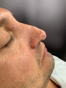 Non-surgical nose job before 2