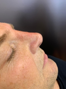 Non-surgical nose job after 3