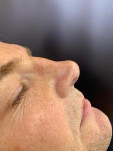 Non-surgical nose job before 3