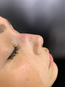 Non-surgical nose job after 4