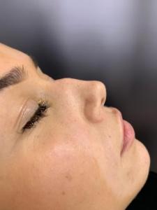 Non-surgical nose job before 4