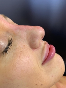 Non-surgical nose job after 5