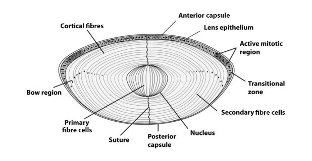 different types of cataract